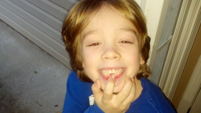Brother lost his 2nd tooth this morning